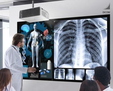LG ProBeam 4K Laser Projector for Hospitals
